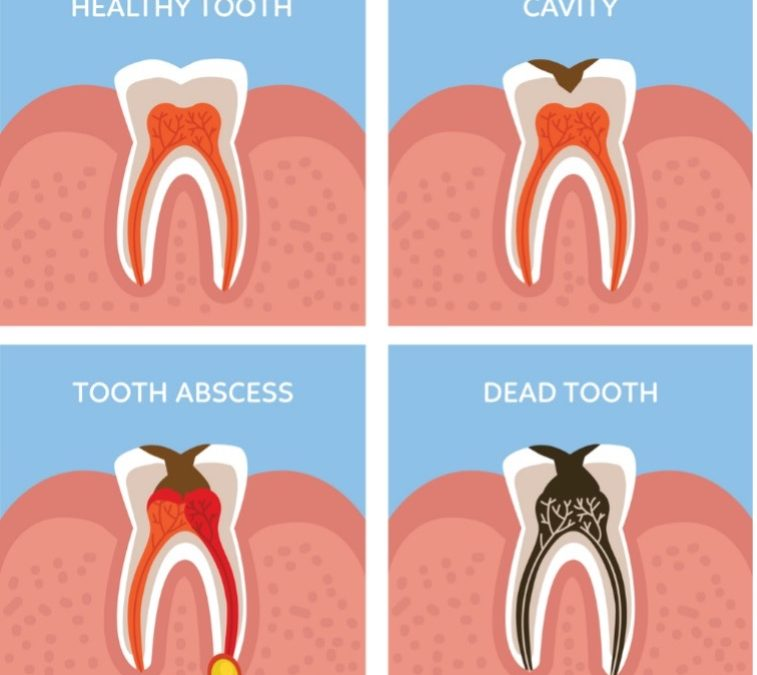 Do I Need a Root Canal if There is No Pain?